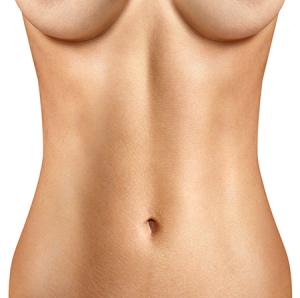abdomenoplastie