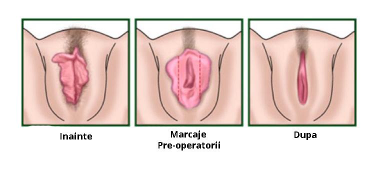 Labiaplastie Dr. Panturu