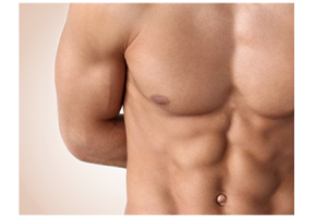 implanturi pectorale la barbati procedura Dr. Panturu
