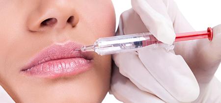 Injectii fillere buze Dr.Panturu