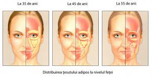 Microlipofilling facial cele 3 stagii Dr. Panturu
