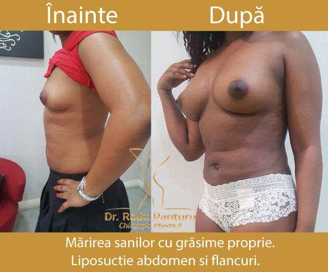 Rezultate inainte Dupa Liposuctie Marire Sani grasime proprie Dr. Panturu
