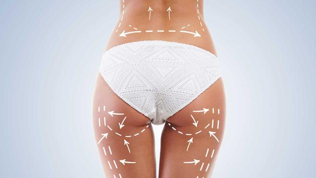 Lifting brazilian vs. Implant cu silicon pentru fese