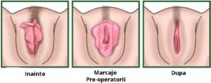 micsorare labii