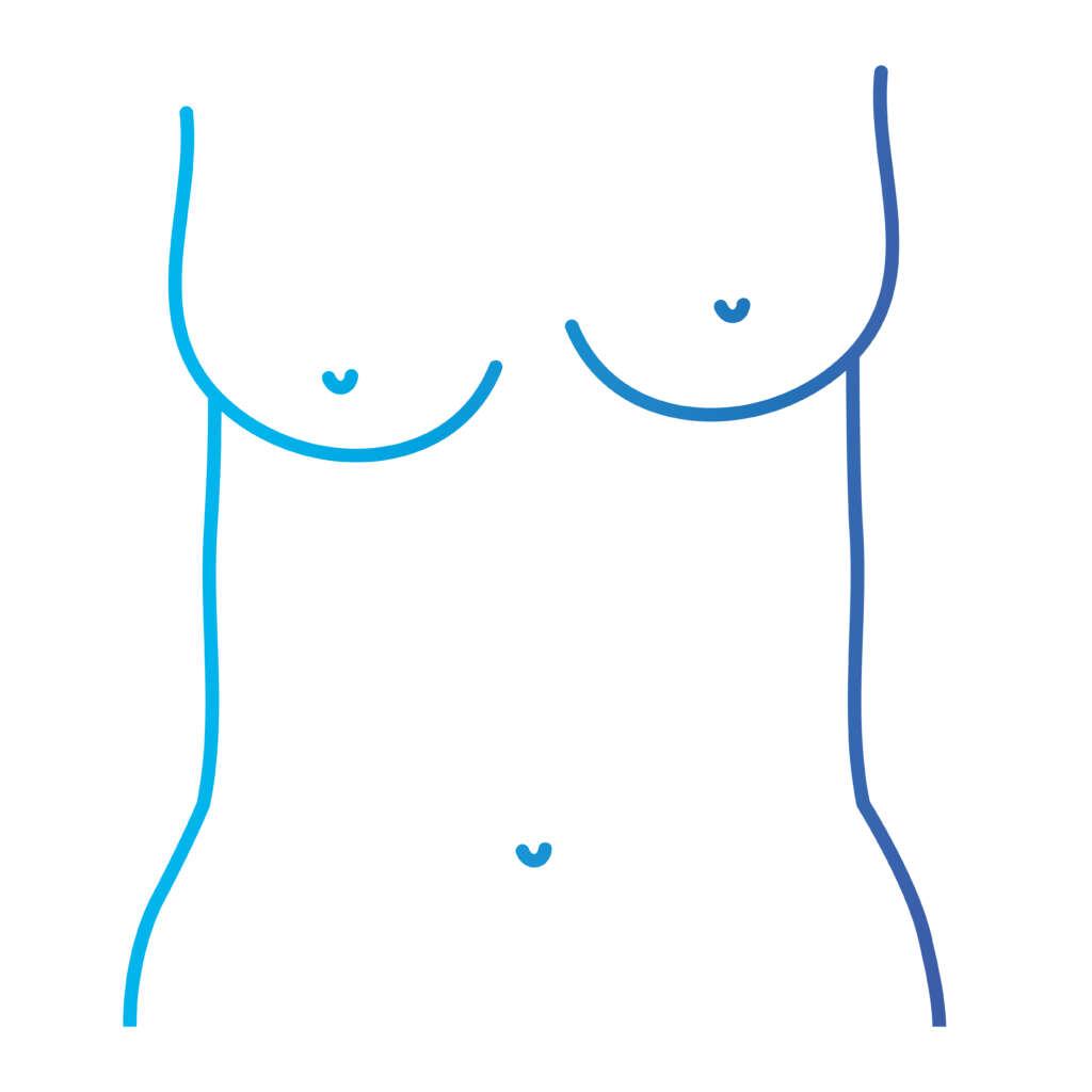 motivele pentru care femeile apelează la implanturi