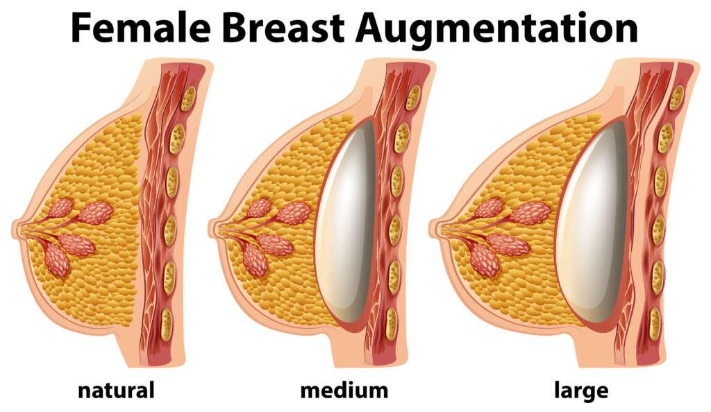 operația de augmentare a sânilor