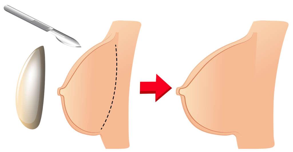 ce trebuie să știi despre intervenția de implanturi mamare